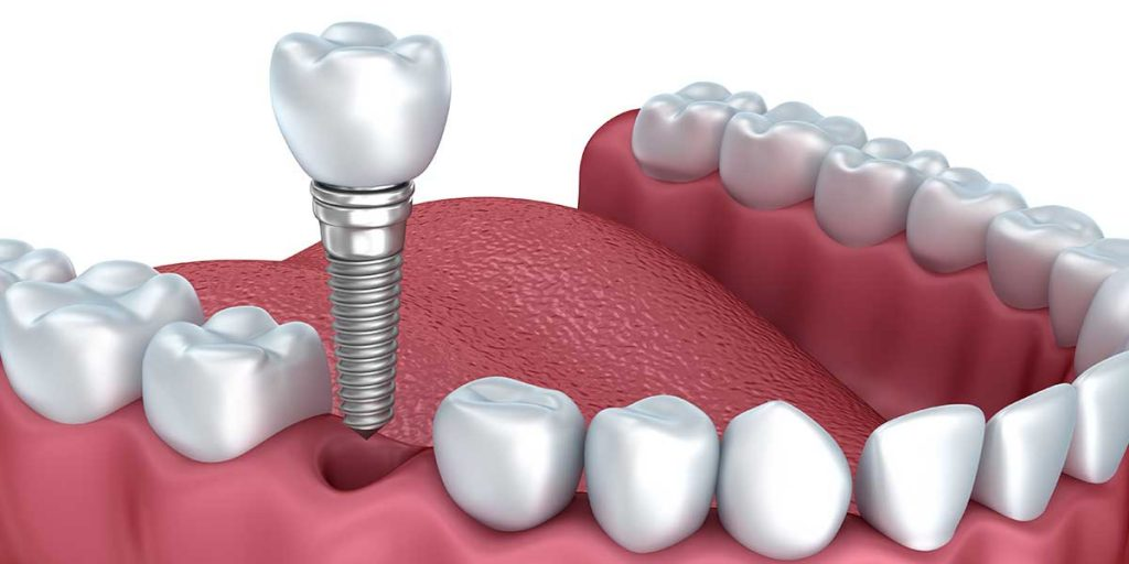 dental implant, dental implants, dental implants in fremont, implantation, dental implant fremont, dental implants cost, dental implants prices, dental implants near me, Best dentist in Fremont, dentist in fremont, best dentist bay area, Indian dentist in Fremont, Fremont Indian dentist, Fremont Dentist