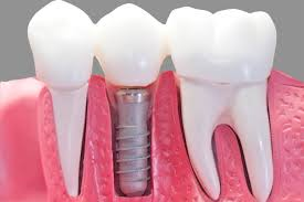 dental implants in fremont