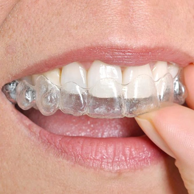DENTIST FREMONT, CA OFFERS INVISALIGN TREATMENT FOR MISALIGNED TEETH