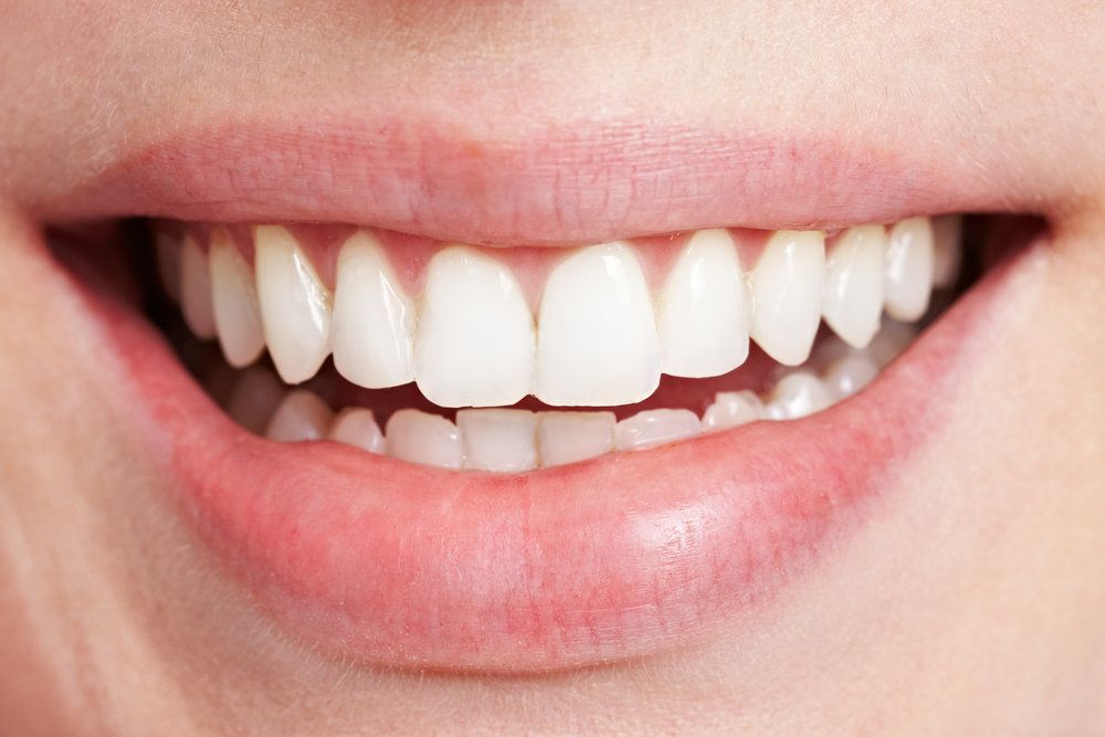 Fremont Teeth Whitening Treatment : Benefits And Maintenanace